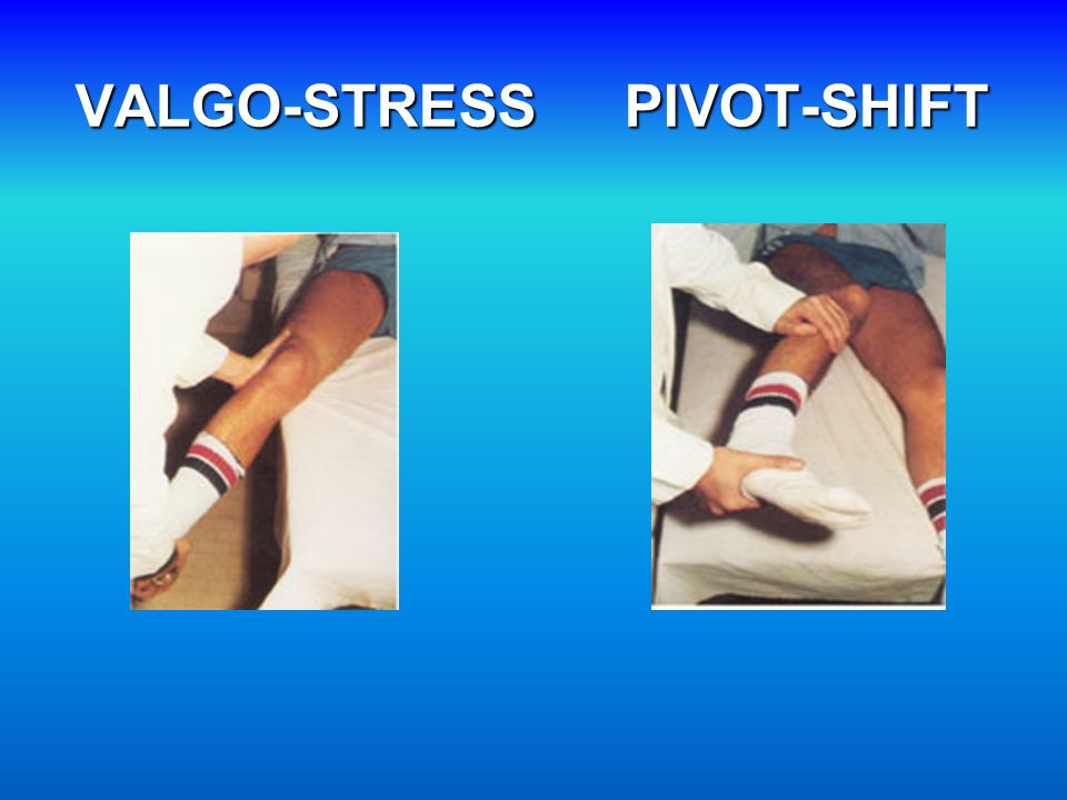 VALGO-STRESS PIVOT-SHIFT
