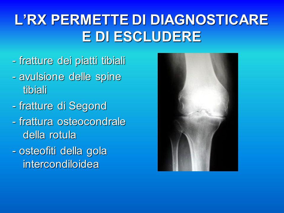 L'RX PERMETTE DI DIAGNOSTICARE E DI ESCLUDERE