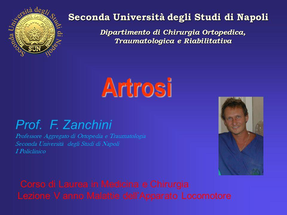 Artrosi Prof. F. Zanchini Seconda Università degli Studi di Napoli