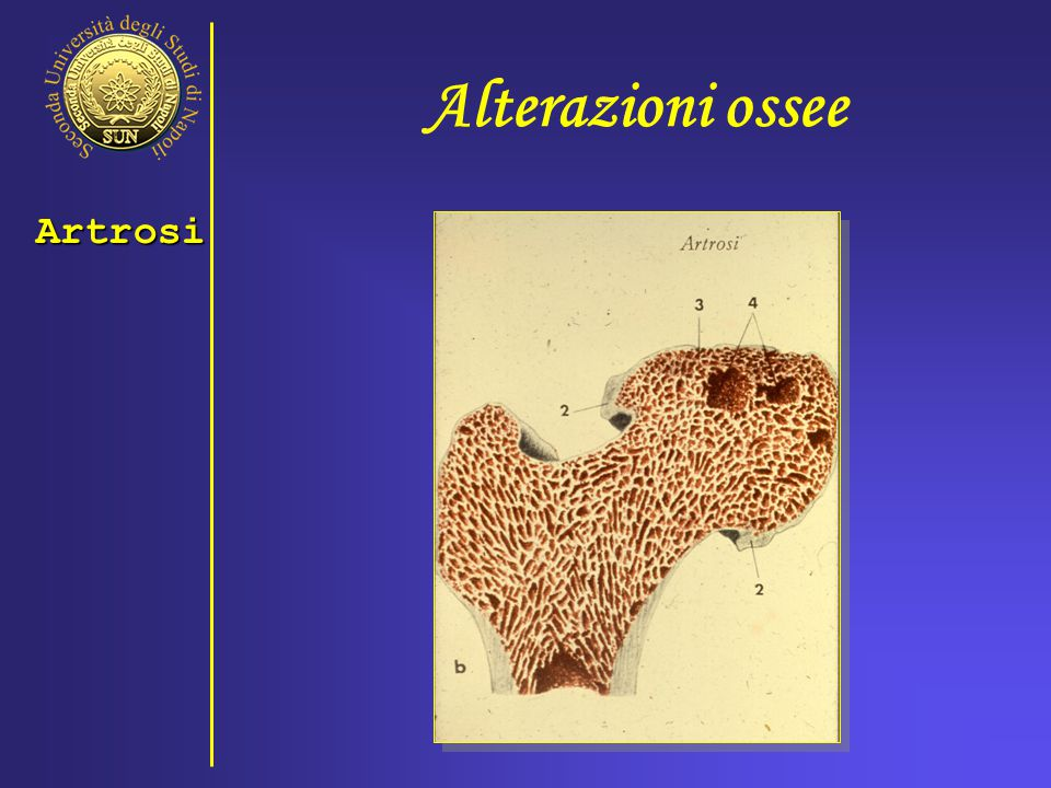 Alterazioni ossee Artrosi