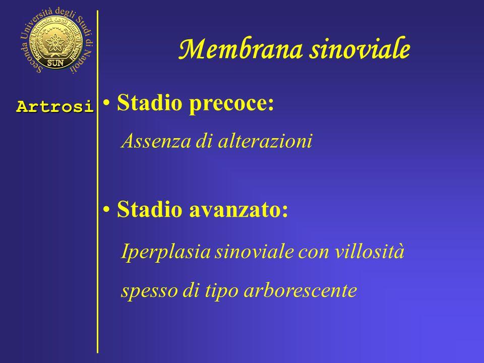 Membrana sinoviale Stadio precoce: Stadio avanzato: