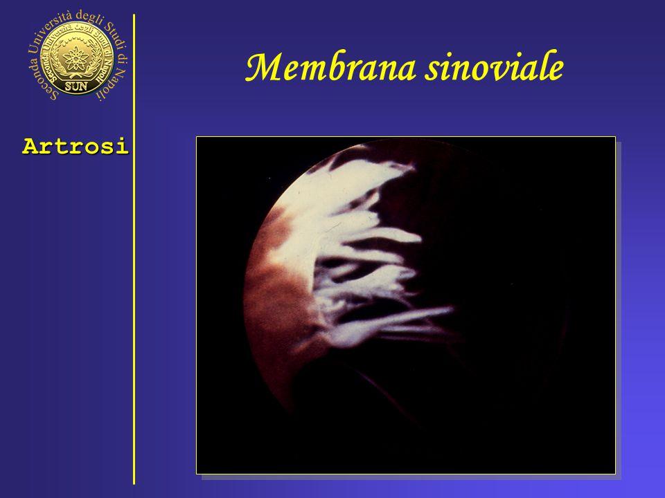 Membrana sinoviale Artrosi