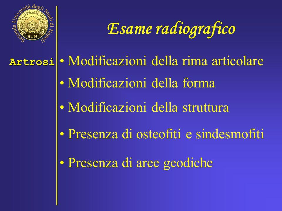Esame radiografico Modificazioni della rima articolare