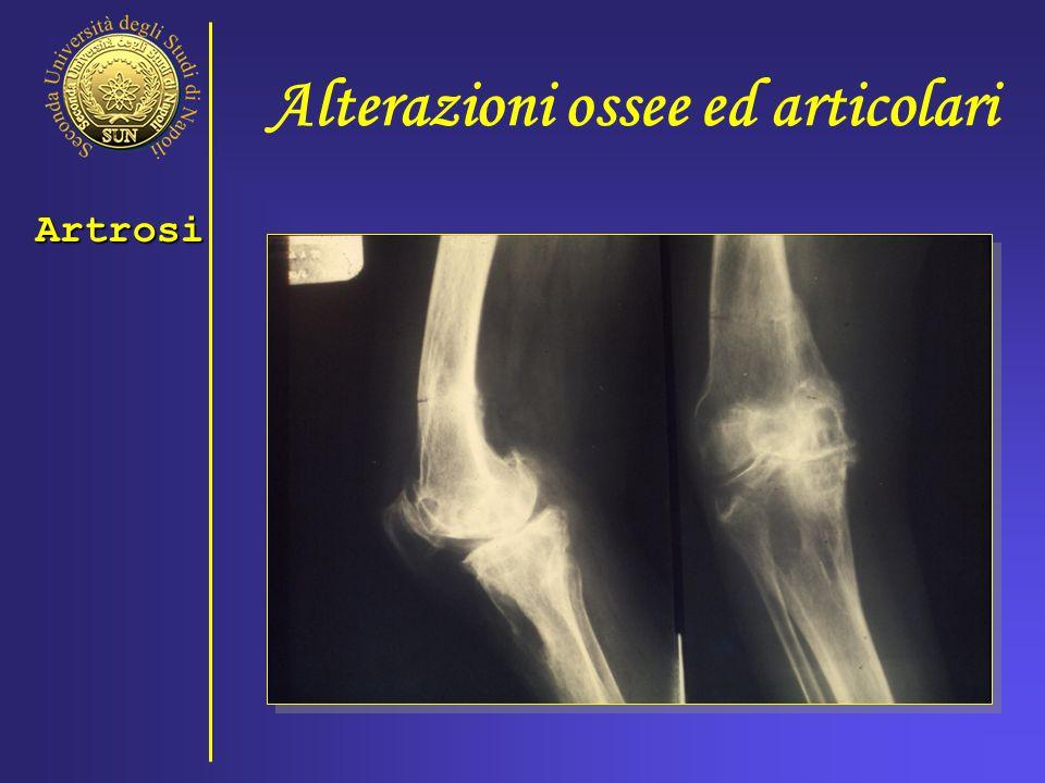 Alterazioni ossee ed articolari