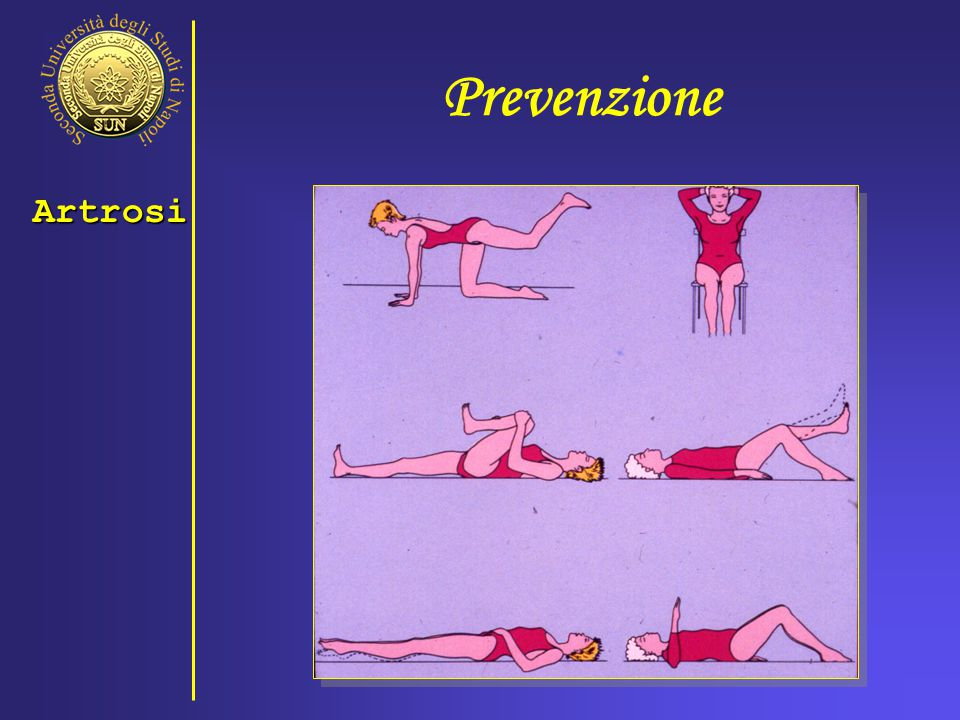 Prevenzione Artrosi