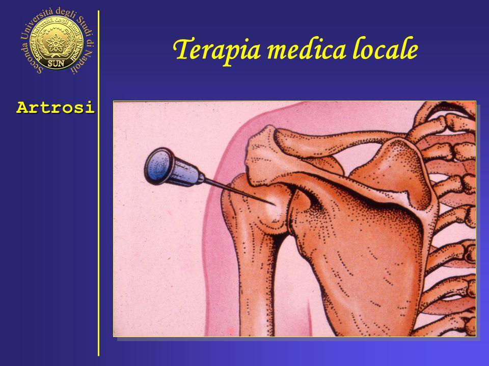 Terapia medica locale Artrosi