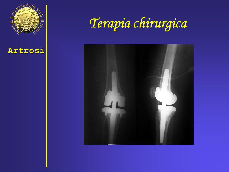 Terapia chirurgica Artrosi