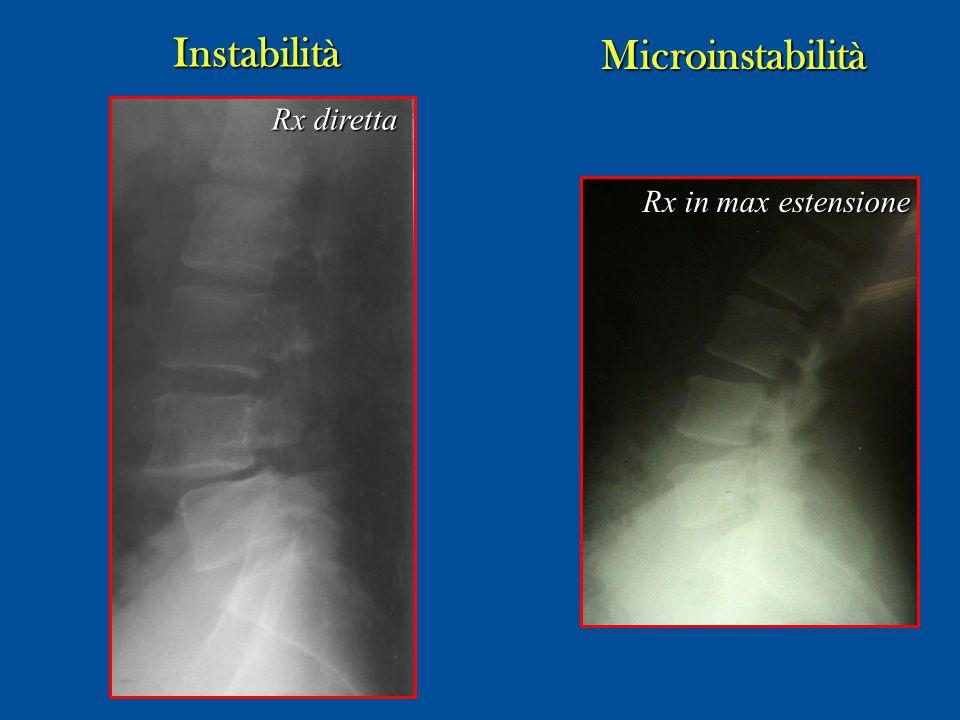 Instabilità Microinstabilità