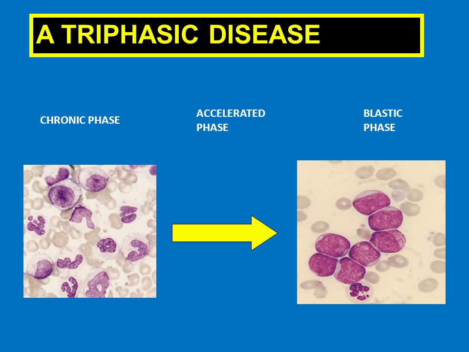 A TRIPHASIC DISEASE ACCELERATED PHASE BLASTIC PHASE CHRONIC PHASE