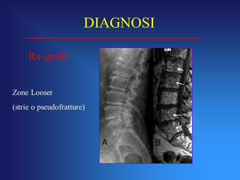 DIAGNOSI Rx-grafia Zone Looser (strie o pseudofratture)