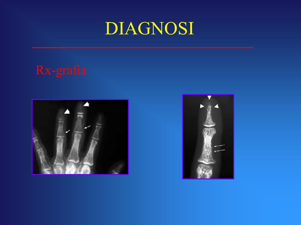 DIAGNOSI Rx-grafia