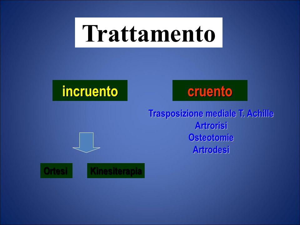 Trasposizione mediale T. Achille