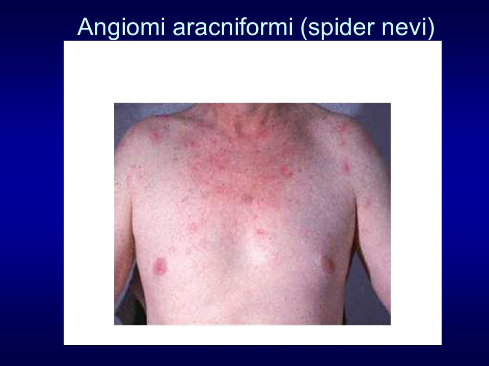 Angiomi aracniformi (spider nevi)