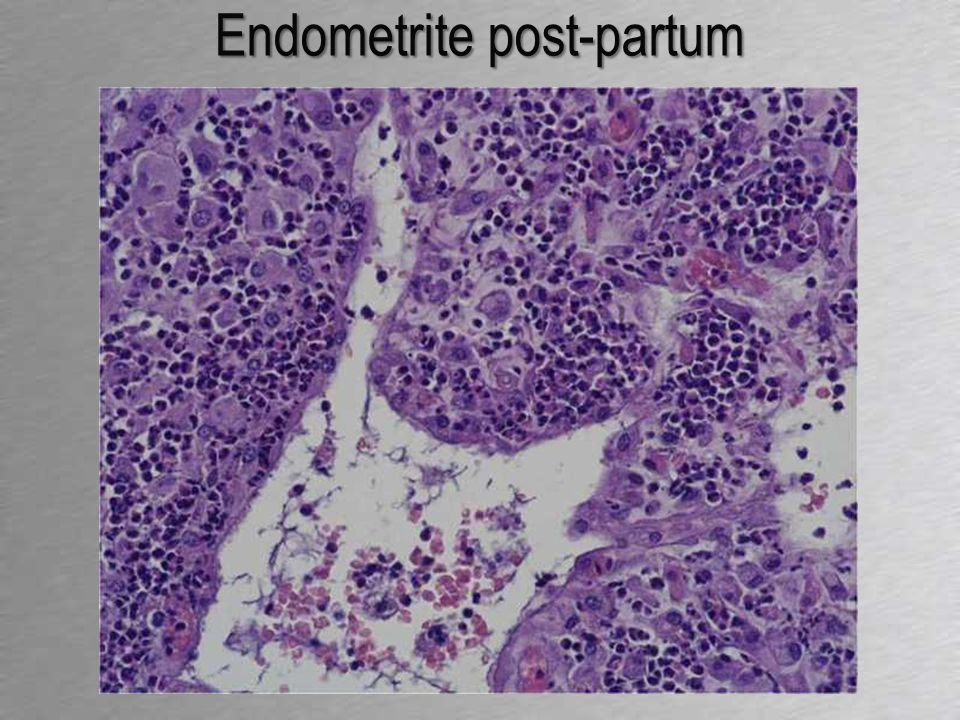 Endometrite post-partum