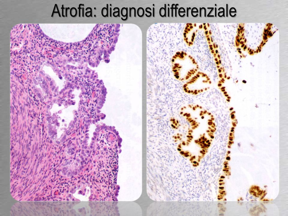 Atrofia: diagnosi differenziale