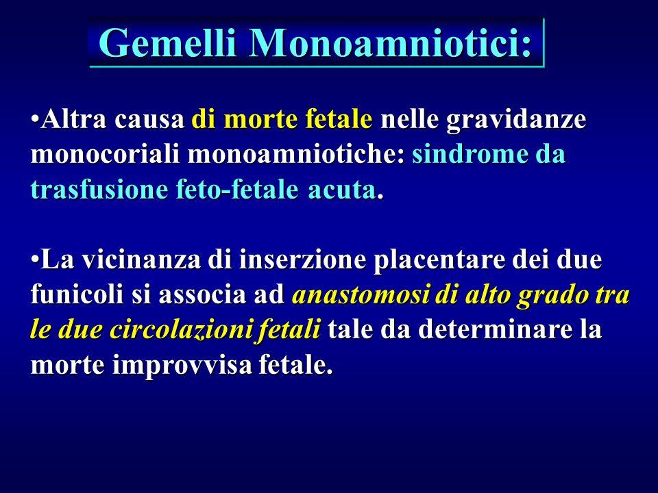 Gemelli Monoamniotici: