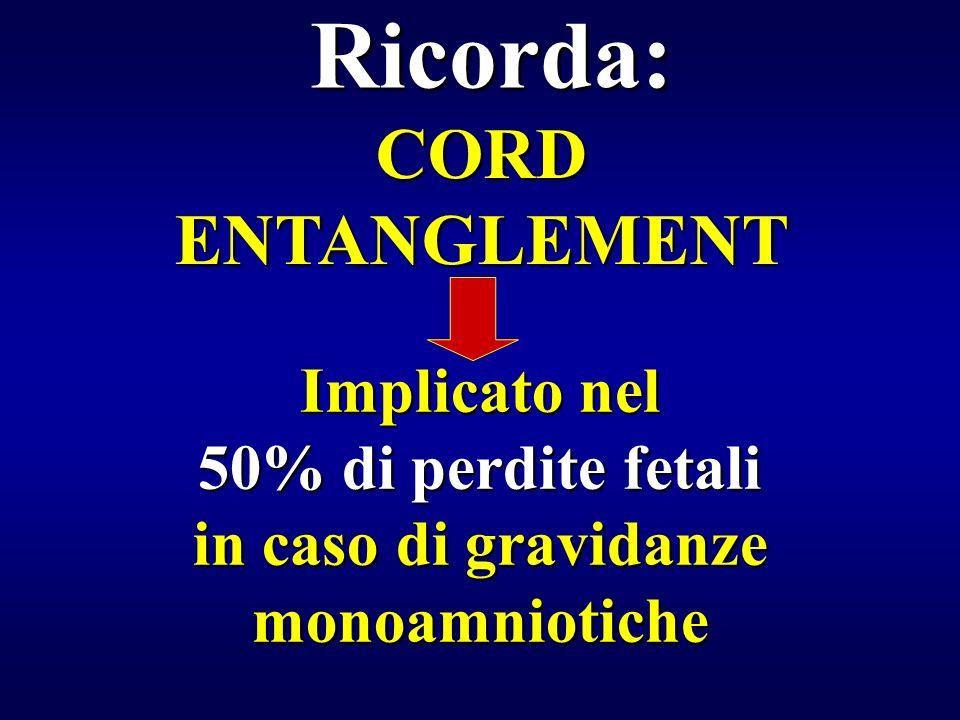 in caso di gravidanze monoamniotiche