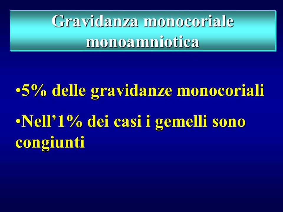Gravidanza monocoriale monoamniotica
