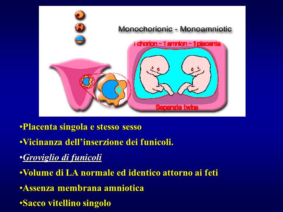 Placenta singola e stesso sesso