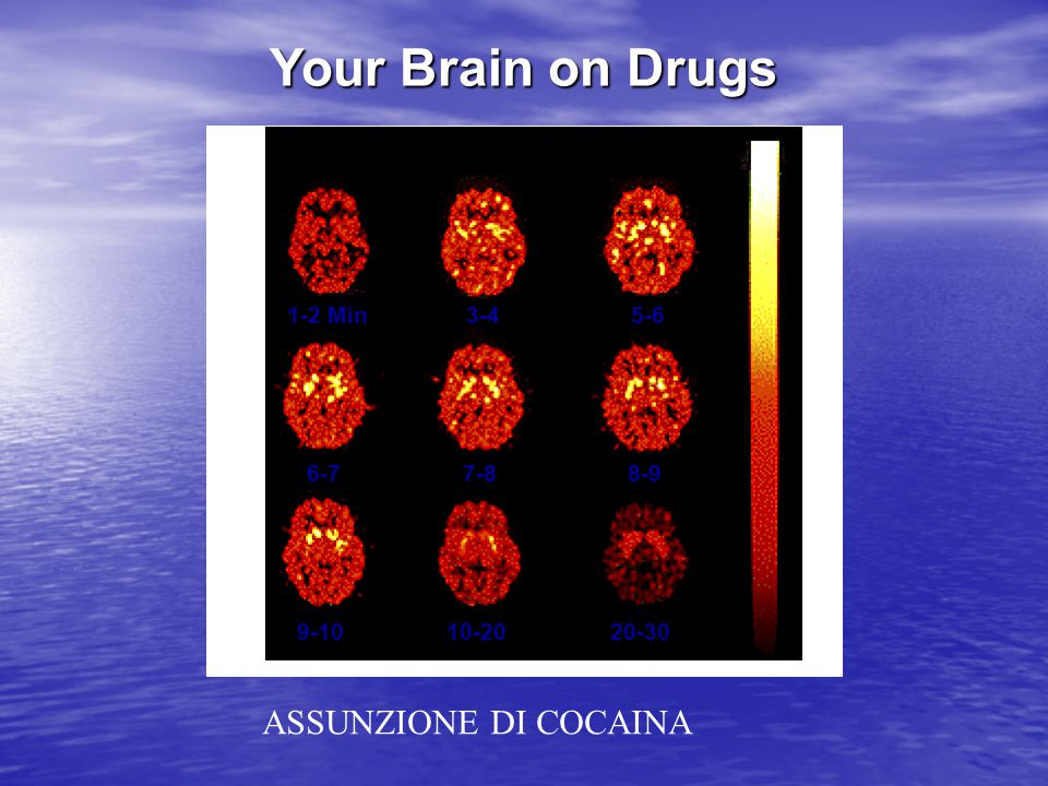 Your Brain on Drugs ASSUNZIONE DI COCAINA 1-2 Min 3-4 5-6 6-7 7-8 8-9
