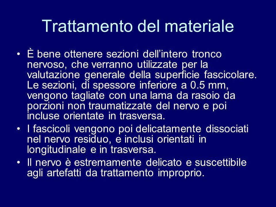 Trattamento del materiale