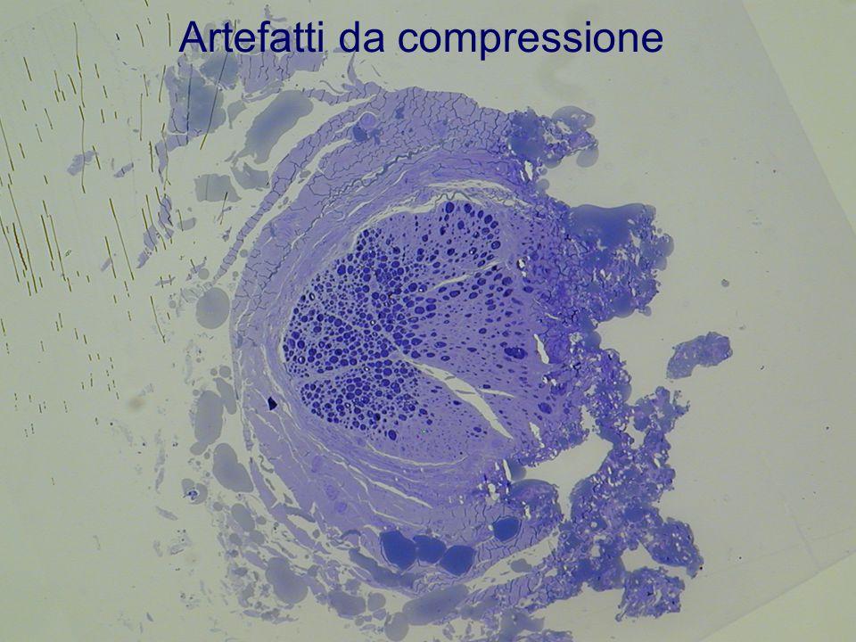 Artefatti da compressione
