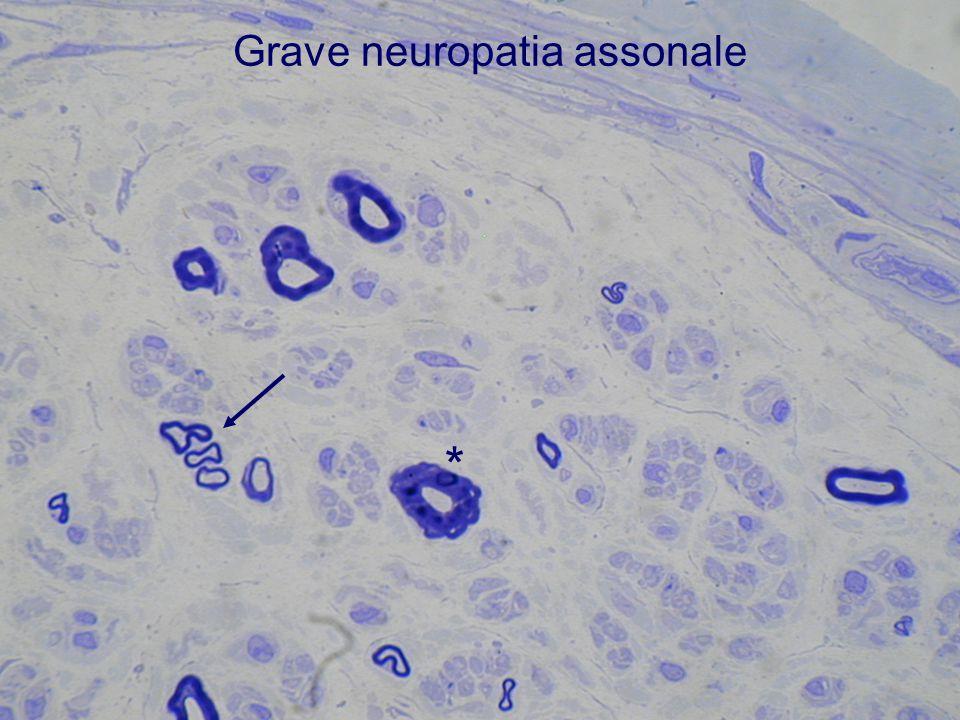Grave neuropatia assonale