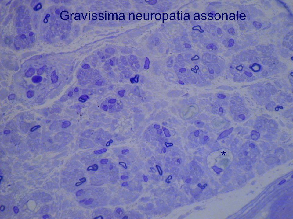 Gravissima neuropatia assonale