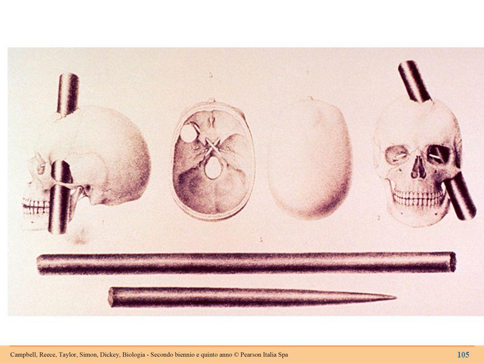 La lesione subita da Phineas Gage, in una litografia del 1850.