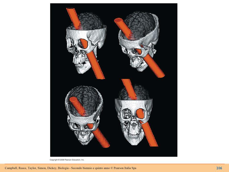 La lesione subita da Phineas Gage in una recente elaborazione al computer.