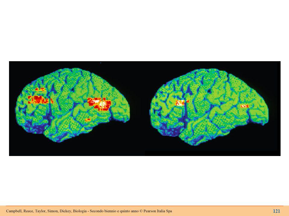 L'attività cerebrale in una persona depressa (a sinistra) e in una persona sana (a destra).