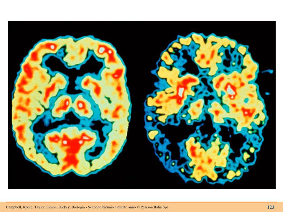 L'attività cerebrale in una persona sana (a sinistra) e in un malato di Alzheimer (a destra).
