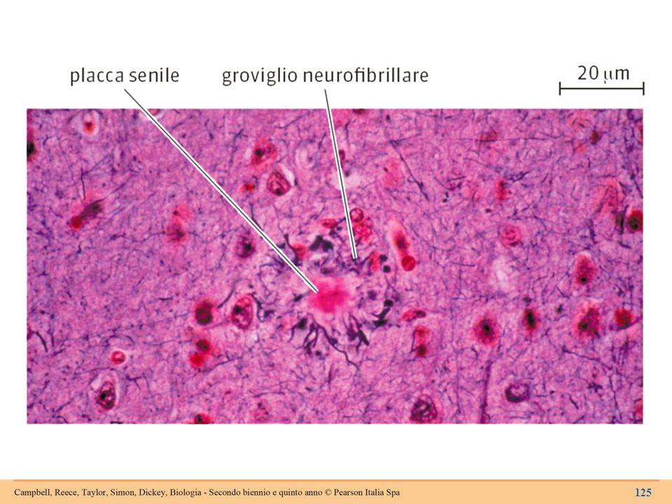 Placche senili e grovigli neurofibrillari nel cervello di una persona affetta dal morbo di Alzheimer.