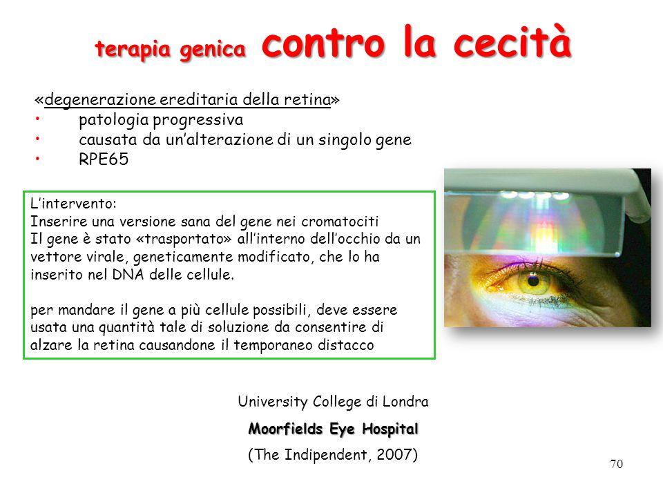 terapia genica contro la cecità Moorfields Eye Hospital