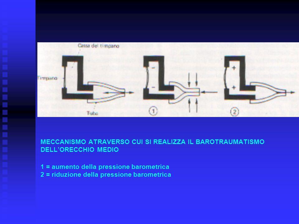 MECCANISMO ATRAVERSO CUI SI REALIZZA IL BAROTRAUMATISMO DELL'ORECCHIO MEDIO 1 = aumento della pressione barometrica 2 = riduzione della pressione barometrica