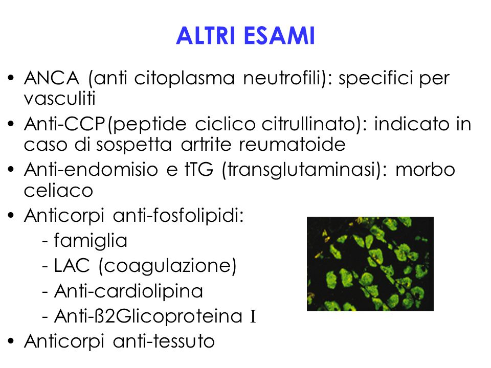 ALTRI ESAMI ANCA (anti citoplasma neutrofili): specifici per vasculiti