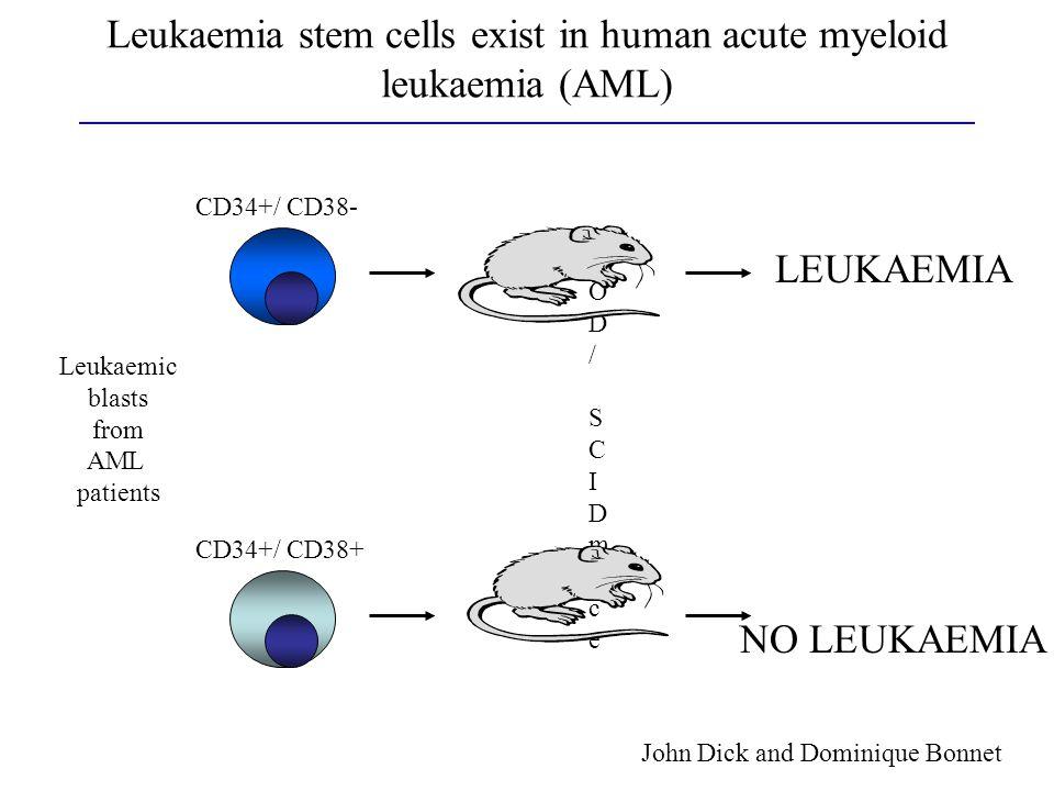 Leukaemia stem cells exist in human acute myeloid leukaemia (AML)