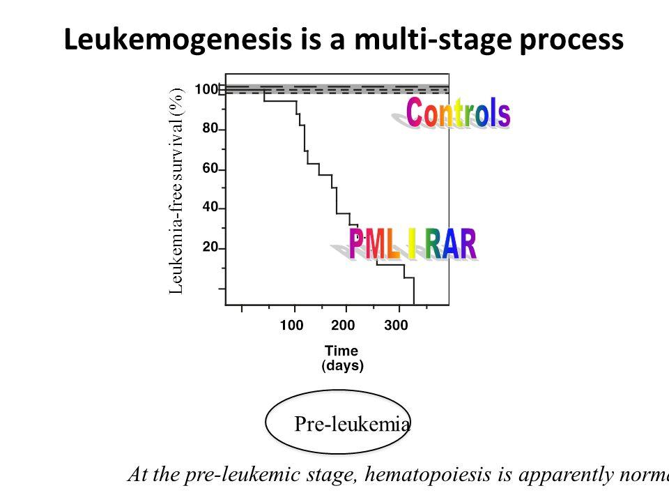 Leukemogenesis is a multi-stage process