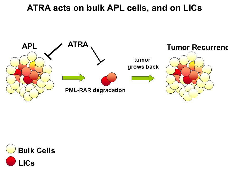 ATRA acts on bulk APL cells, and on LICs