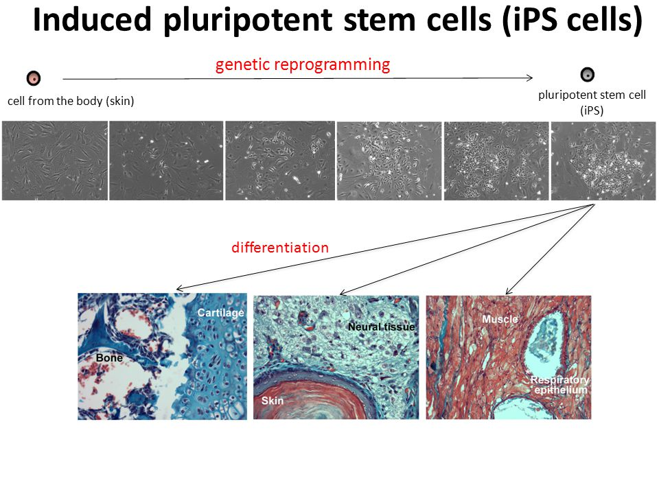 Induced pluripotent stem cells (iPS cells)