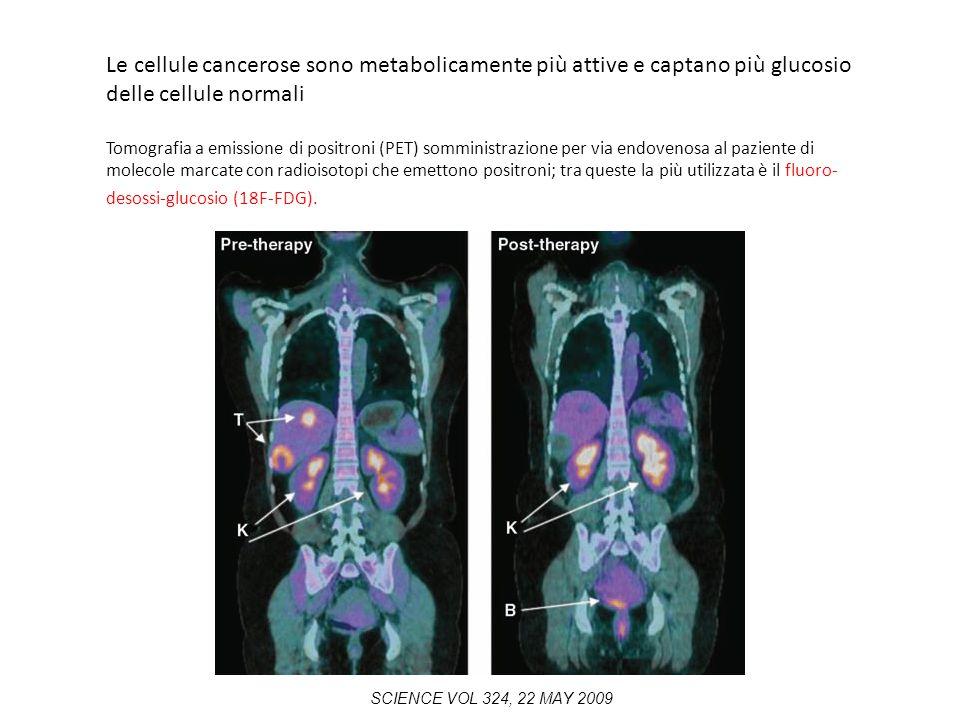 Le cellule cancerose sono metabolicamente più attive e captano più glucosio delle cellule normali