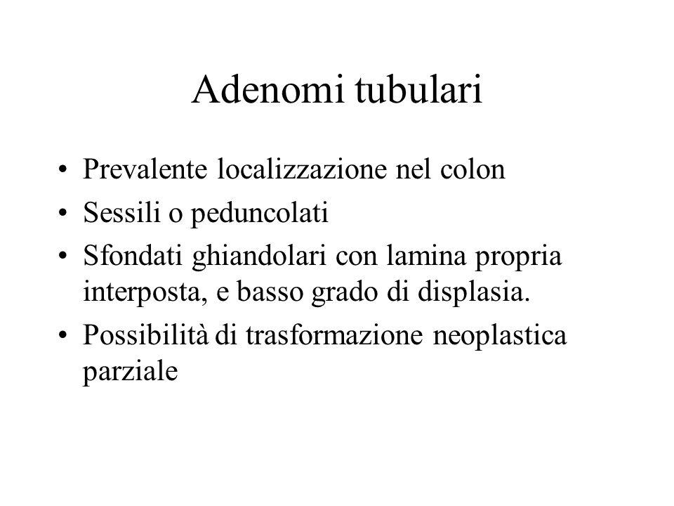 Adenomi tubulari Prevalente localizzazione nel colon