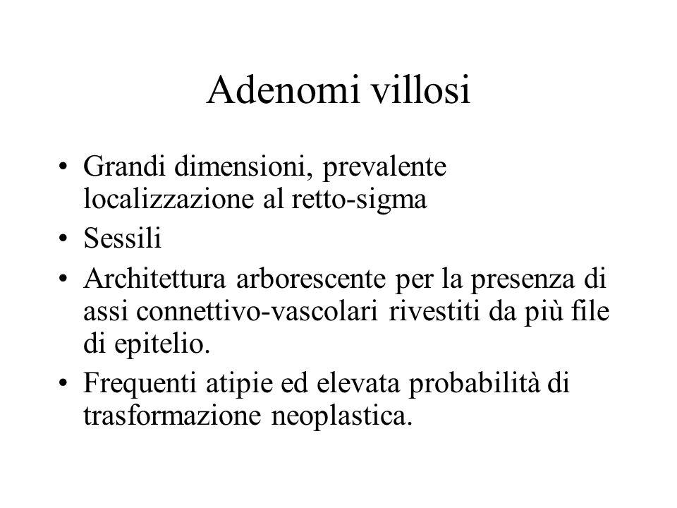 Adenomi villosi Grandi dimensioni, prevalente localizzazione al retto-sigma. Sessili.