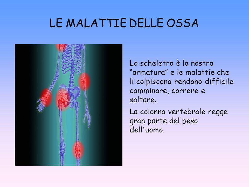 LE MALATTIE DELLE OSSA Lo scheletro è la nostra armatura e le malattie che li colpiscono rendono difficile camminare, correre e saltare.