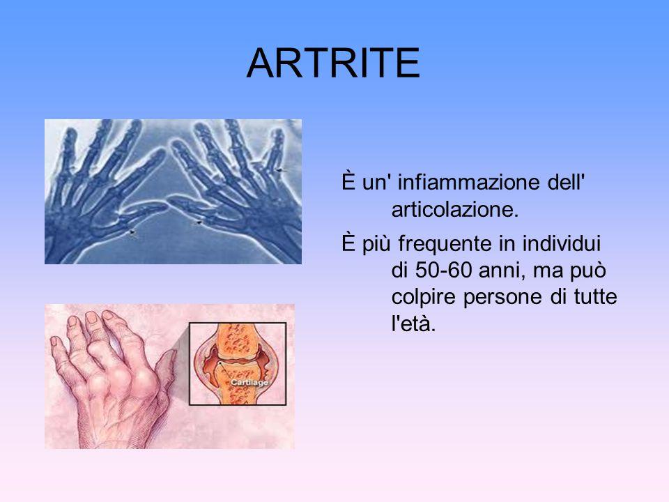 ARTRITE È un infiammazione dell articolazione.