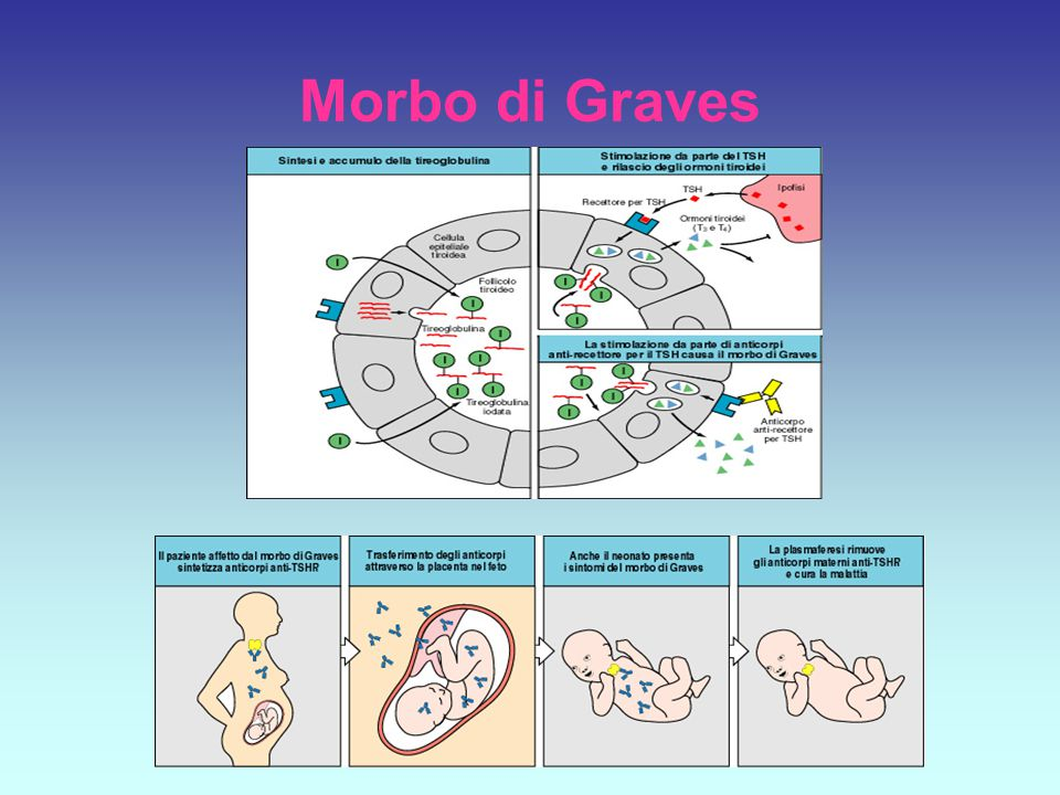 Morbo di Graves
