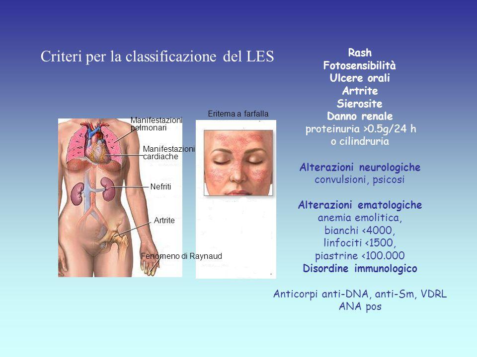 Criteri per la classificazione del LES
