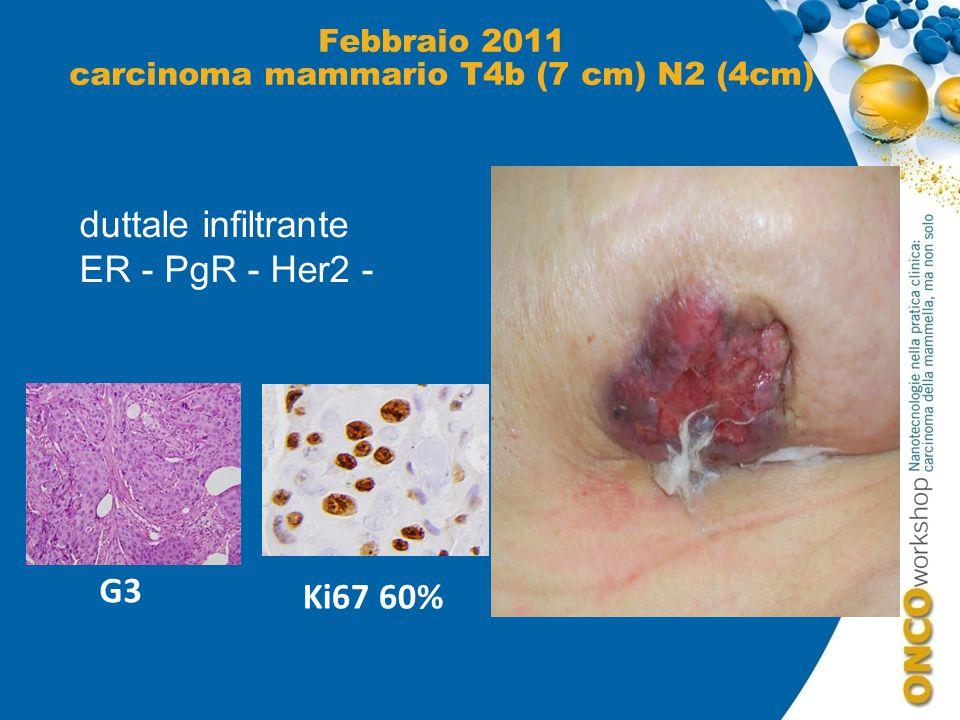 Febbraio 2011 carcinoma mammario T4b (7 cm) N2 (4cm)