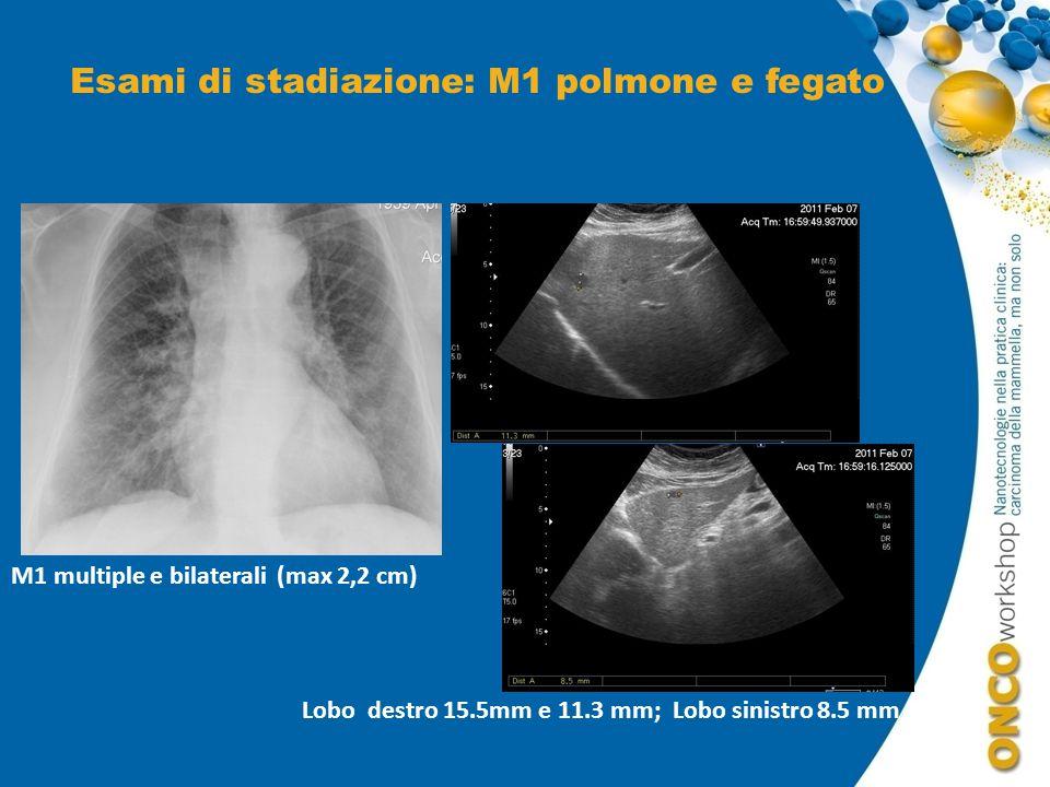 Esami di stadiazione: M1 polmone e fegato