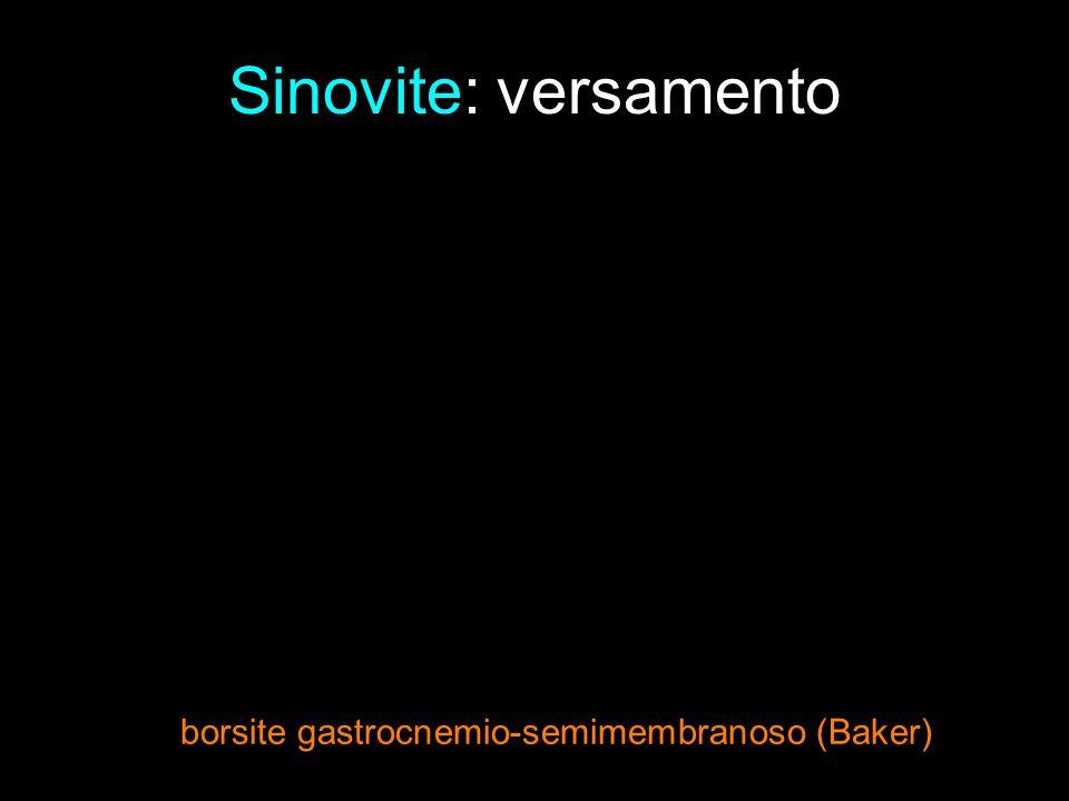 Sinovite: versamento borsite gastrocnemio-semimembranoso (Baker)